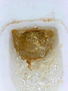Удалить мочевой камень с унитаза в домашних условиях
